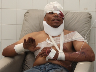 acidente envolvendo evangélicos - 6 - foto- Raimundo Mascarenhas - calilanoticias