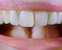 Dente recriado é menos rígido que o dente humano natural