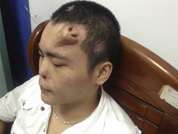 Xiaolian se prepara para o transplante do novo órgão, que cresceu na sua testa a partir do implante de um expansor de tecido e com pedaço de cartilagem da costela. (Foto: Reuters/Stringer)