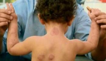 Criança foi mordida nos braços, pernas, costas, peito, pescoço e cabeça