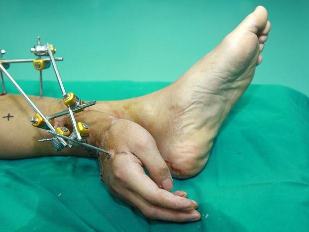 Chinês teve mão reimplantada junto ao tornozelo para membro receber fluxo sanguíneo (Foto: HAP/Quirky China News/Rex Images)