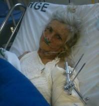 Vítima esteve consciente durante o tempo que esteve internada, mas seu quadro de saúde agravou.