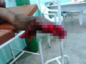 Apesar do grave acidente, vítima passa bem.