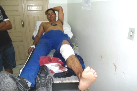 Vítima deverá passar por cirurgia para reconstituir a patela (joelho) que dividiu ao meio.