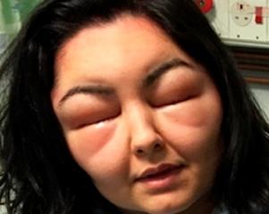 O inchaço permaneceu no rosto de Dinya por três semanas, e ela ficou outros três anos sem usar a tintura, por medo da reação.