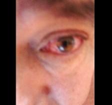 Conjutivite em olho de paciente diagnosticado com zika, dengue e chikungunya.