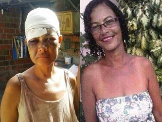 Nide antes e depois de sofrer as agressões   Foto arquivo da família